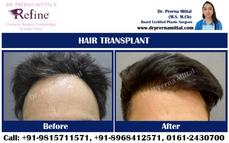 HAIR TRANSPLANT5