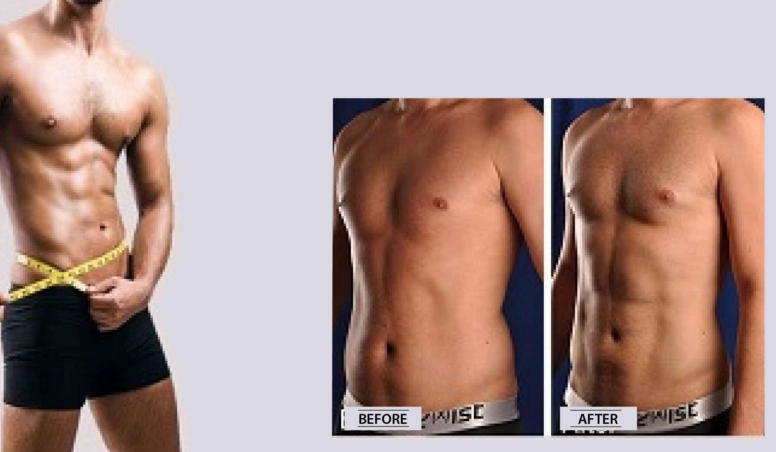 03 Liposuction Before After (Male)