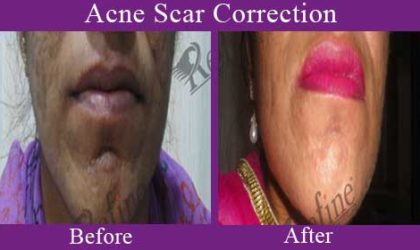 Acne-Scar-Correction--1