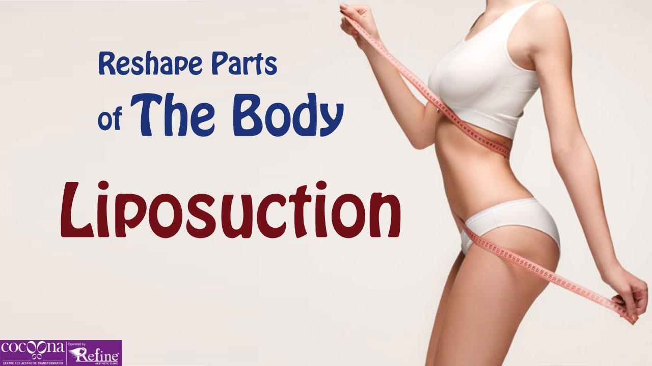 liposuctionjuly